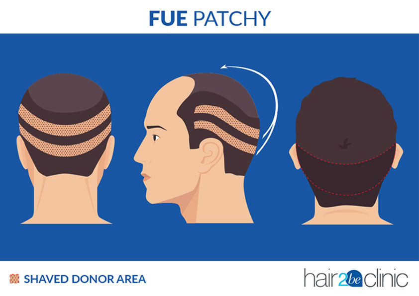 FUE Patchy