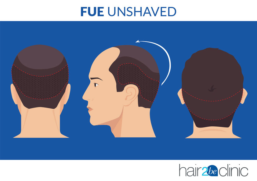 FUE Unshaved