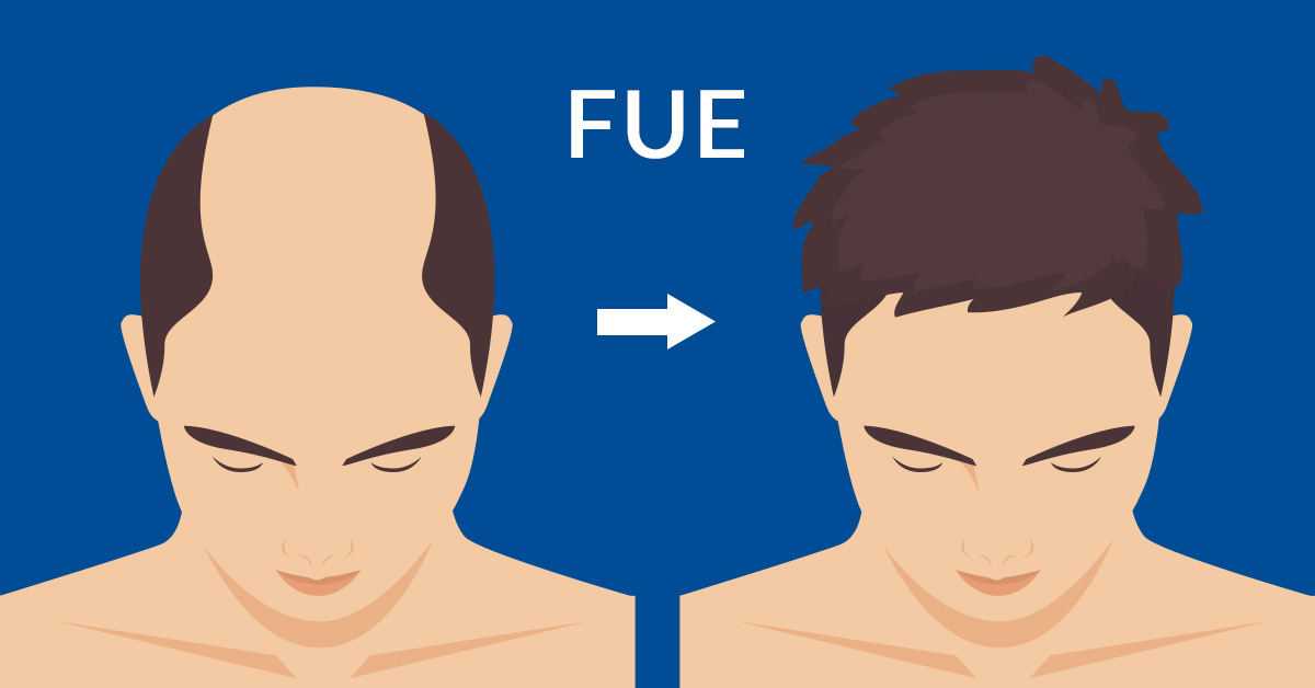 Is the FUE grafting technique invisible and scar-free?